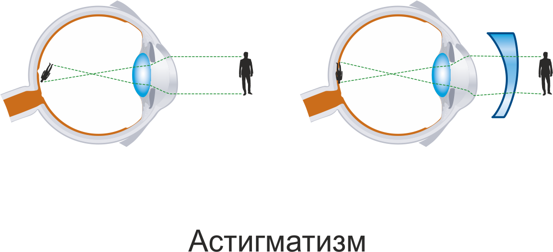 astigmatism ophthalmology and light sensitive surface