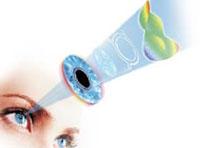 Зарядка для глаз при близорукости с картинками